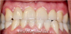 Porcelain Crowns | Fort Lauderdale Dentist