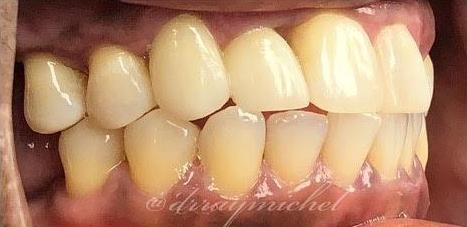 Root Canal After Photo | 33306 Dentist