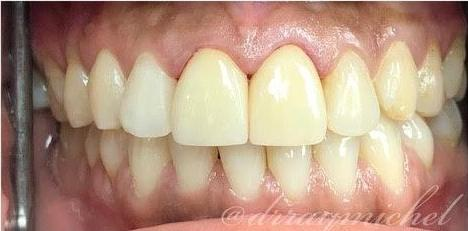 patient with veneers | Cosmetic Dentist Fort Lauderdale