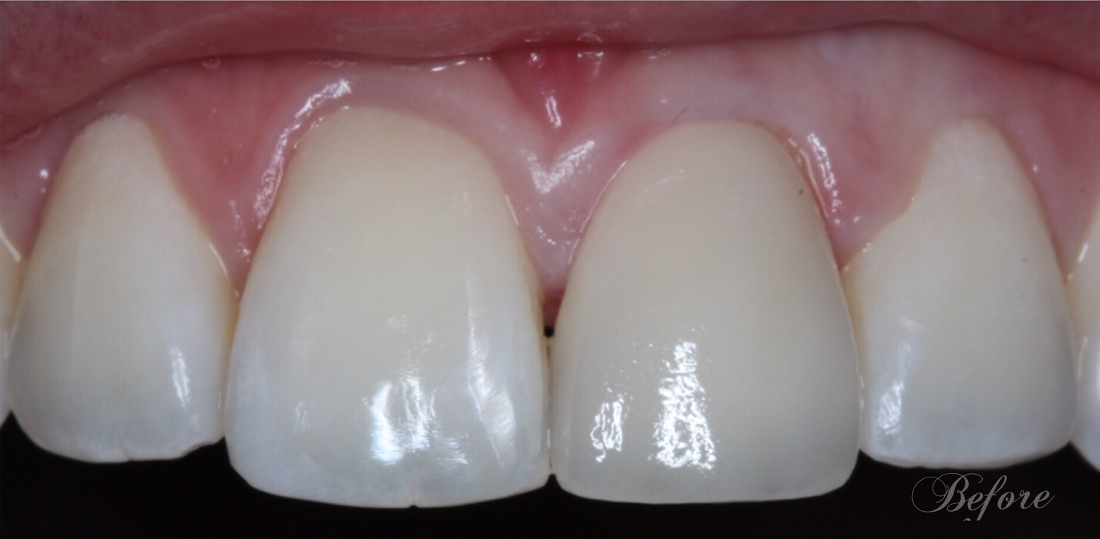 Patient before Crown Replacement | 33306 Dentist