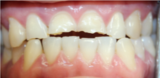 dental crowns before photo | Fort Lauderdale Dentist