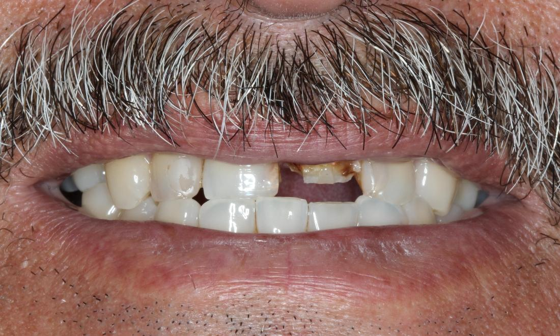 Patient before dental crowns | 33306 Dentist