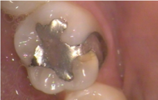 tooth before tooth colored filling | Fort Lauderdale Dentis