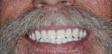Full-Mouth-Extraction-and-Complete-Immediate-Denture-Fabrication-After-Image