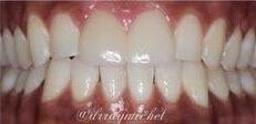 Veneer-Replacement-in-Fort-Lauderdale-33306-After-Image