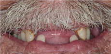 Full-Mouth-Extraction-and-Complete-Immediate-Denture-Fabrication-Before-Image