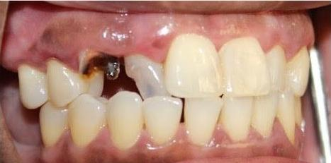 Root-Canal-Post-Core-Crowns-Before-Image
